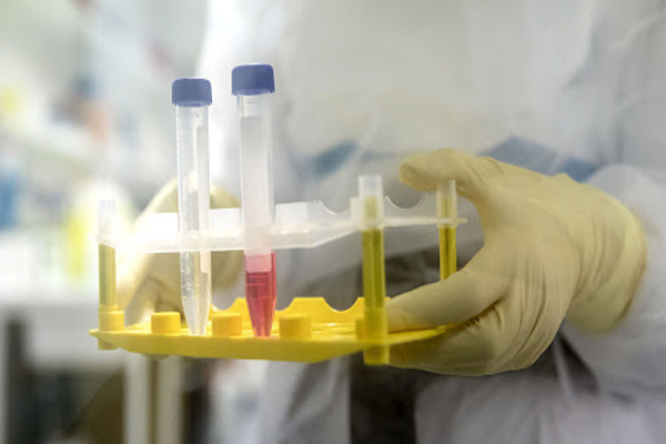 First Coronavirus VACCINE Human TRIAL Starts in USA