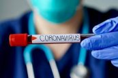 LATEST on CORONAVIRUS From The USA